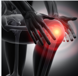 Knee Replacement Surgeons in Adelaide